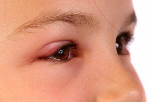 اضطرابات تصيب جفن العين